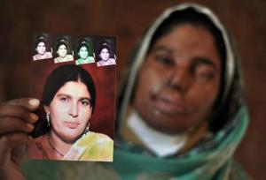 An acid victim poses with a picture of her before the attack.